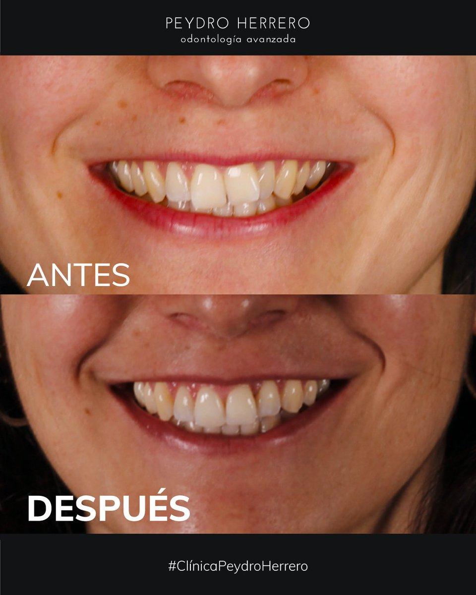 En #ClinicaPeydro somos expertos en #ortodonciainvisible  Solucionamos, #sonrisagingival, #apiñamientos, #maloclusiones...  ☎  963 14 78 25  #clinicadental #Valencia #odontologia #invisalign https://t.co/TDpszsJ3QU