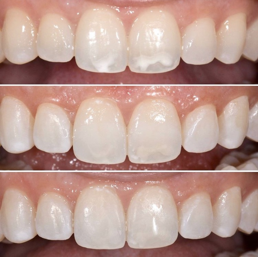 """Icon Repost: @centrodentistry  """"ICON resin infiltration to treat white spot lesions. No enamel or tooth structure removal was needed. Patient was thrilled with the conservative approach and natural esthetics. """" Click the link to learn more #IconByDMG, https://t.co/z6nojGrwUy https://t.co/6PXYtuBqAq"""