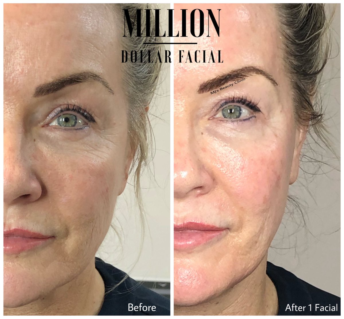 IT'S A MILLION DOLLAR© MONDAY  No Filters No Edits Just another Client looking a Million Dollars!!  More infohttps://www.mjsbeautyclinic.co.uk/million-dollar-facials …  #royton #mjsbeautyclinic #manchester #platinumtech #glowingskin #naturalglow #skin #milliondollarfacials #facials #miraclemask #iceglobespic.twitter.com/9GHjgdeb5L