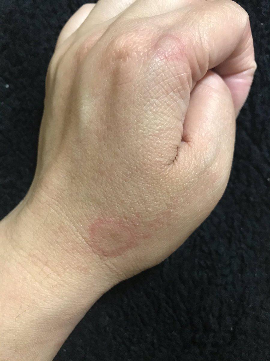 寒暖 差 アレルギー 蕁 麻疹