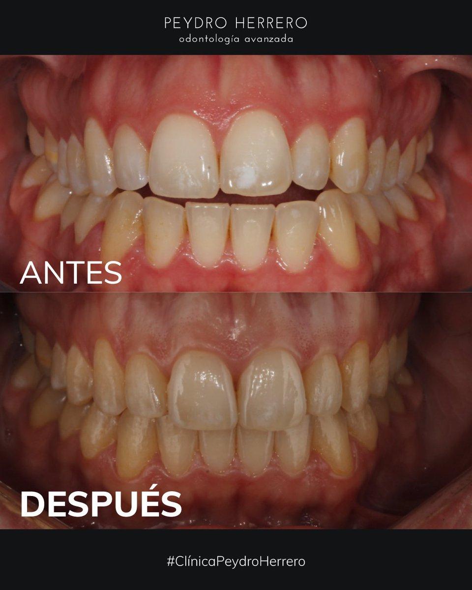🤔¿Has acudido a una #clinicadental y te han dicho que solucionar tu #sonrisagingival con #ortodonciainvisible era imposible?  En Clínica Peydro te demostramos que la ortodoncia puede solucionar tu sonrisa gingival si te pones en manos de un experto como el doctor Diego Peydro 👇 https://t.co/cNJfYtJWqF