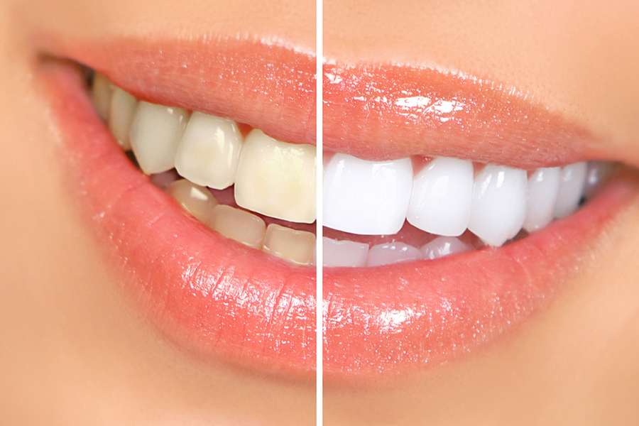 Tooth whitening (Clareamento dental)is a preferable treatment which everyone is searching for and often opt-in for it in place of teeth bleaching. Just because the whitening removes the dirt and stains. Visit here #Clareamentodental (Tooth whitening) https://www.odontologiacampagnone.com.br/servico/clareamento-dental/ …pic.twitter.com/XK8G0tE4U1