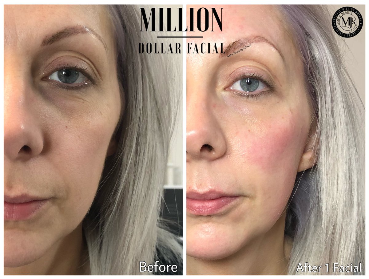 ANOTHER MILLION DOLLAR© BABE  A Luxurious Facial where science meets indulgence. You too can look & feel a Million Dollars  More info  https://www.mjsbeautyclinic.co.uk/million-dollar-facials …  #royton #mjsbeautyclinic #manchester #glowingskin #milliondollarfacials #miraclemask #iceglobes #nofilter #dermaplaneukpic.twitter.com/LkwB2TO2CU