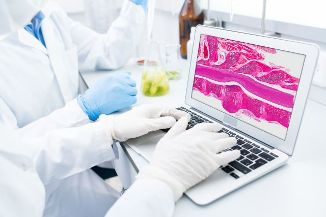 Experienced pathologists are excited about the impact of #AI on their craft. Learn what all the buzz is about in our new webinar series. https://bit.ly/33H6J8y