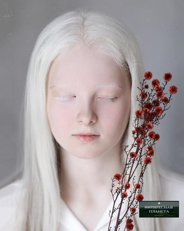 """""""1億人に1人"""" の確率で生まれた。「アルビノ」×「(オッドアイ)」の女の子が美しすぎる。"""