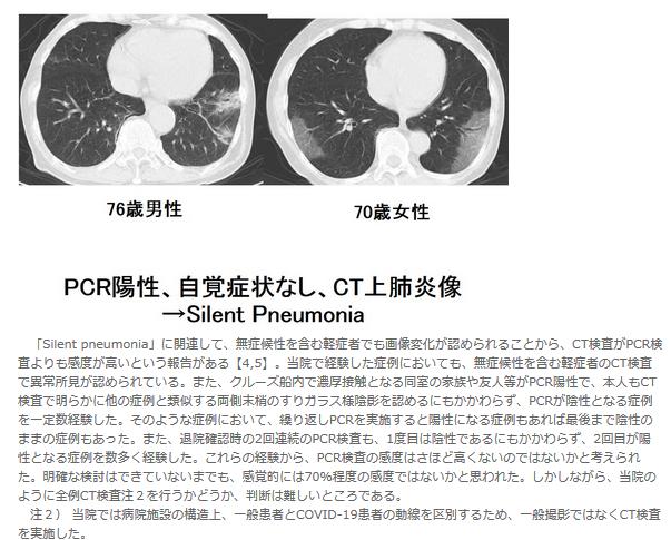 肺炎 サイレント