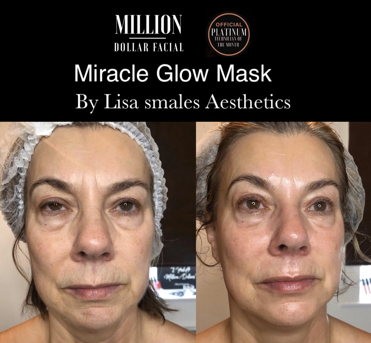 Million Dollar Miracle Glow Mask with Dermaplaning ! Leaving my clients skin so Soft , brighter , lighter tighter !  Amazing !  #Milliondollarmask #milliondollarglow #milliandollarfacial #milliondollarfacials #leeds #horsforth #lisasmalesaestheticspic.twitter.com/qMz0wND9AW