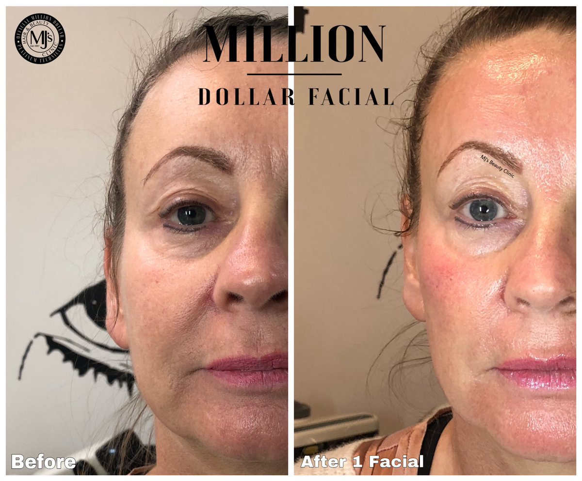 IT'S A MILLION DOLLAR© MONDAY  Another lovely lady looking & feeling a #MillionDollars, who's next?   More infohttps://www.mjsbeautyclinic.co.uk/million-dollar-facials …  #royton #mjsbeautyclinic #manchester #platinumtech #glowingskin #milliondollarfacials #facials #miraclemask #iceglobes #milliondollarbodypic.twitter.com/TC2s5NhG1L
