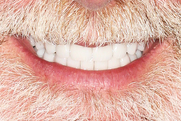 Our smile makeover patients aren't afraid for you to get a look up close and personal. That's because porcelain #veneers, crowns, bridges, #dentalimplants and #reconstructivedentistry leave them with an amazing sense of confidence that can't be beat. http://TheCosmeticDentistsOfAustin.compic.twitter.com/D9AzjEFlFb