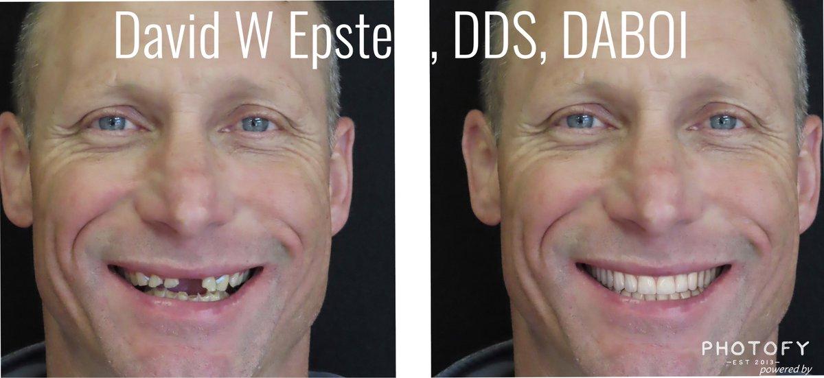 #BeforeandAfter #dentalimplants #smile #freshstart #fullmouthreconstruction pic.twitter.com/javbFYYmh7