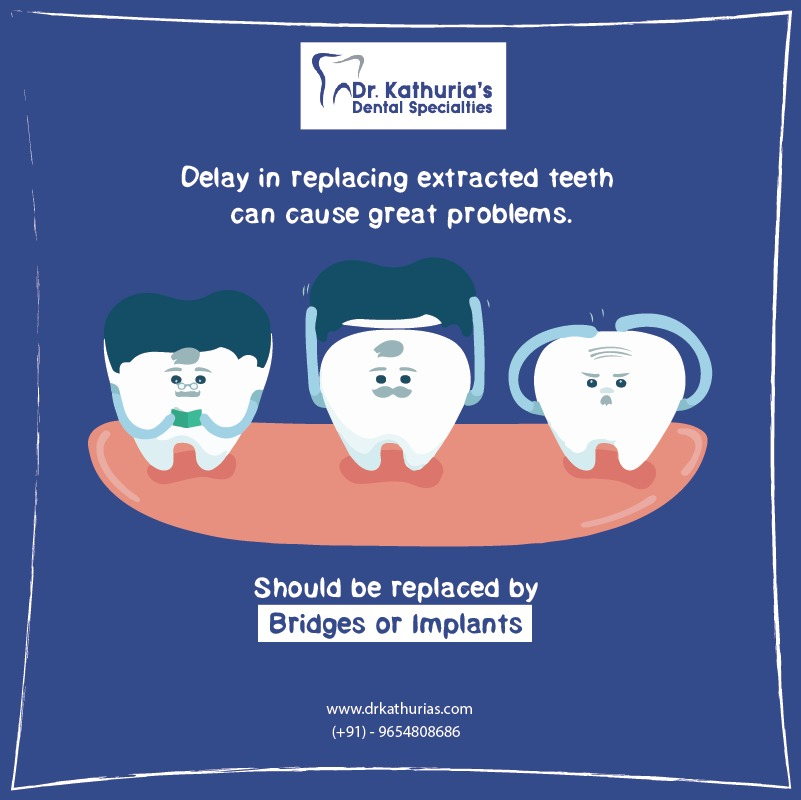 Delay in replacing extracted teeth can cause great problems. It should be replaced by bridges or implants. Call us: 011 4084 6238. #badbreath #smile #gumproblem #dentalimplant #smilemakeover #gums #teethwhitening #rootcanal #treatments #dentalcaretips #dentalclinic #delhipic.twitter.com/T9Zzodmwf8