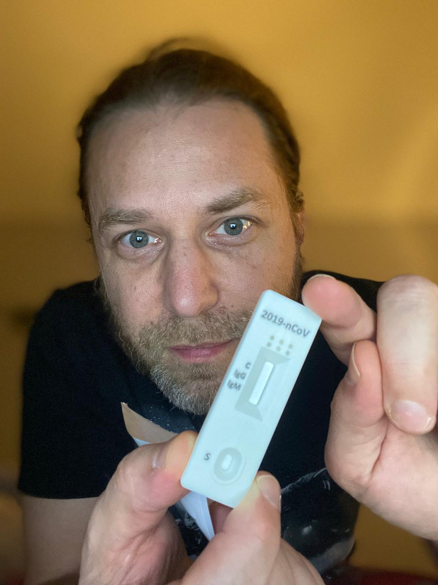 Its here: Prototype SARS-COV-2 specific IgM & IgG immune response test. Pin Prick. 10 mins. CE certified. Lets see. Time to trial it on some our front line healthcare professionals and carers so we can get back to patients and back to looking after our elders. #CoronaCrisis   https://twitter.com/drjackUK/status/1241153547296743433  …