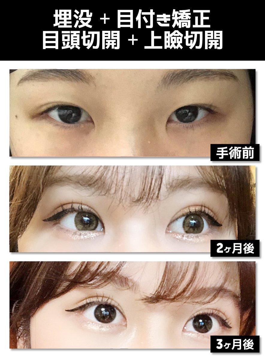 目頭 切開 韓国 目尻・目頭切開で目を大きく|韓国美容整形|ID美容外科