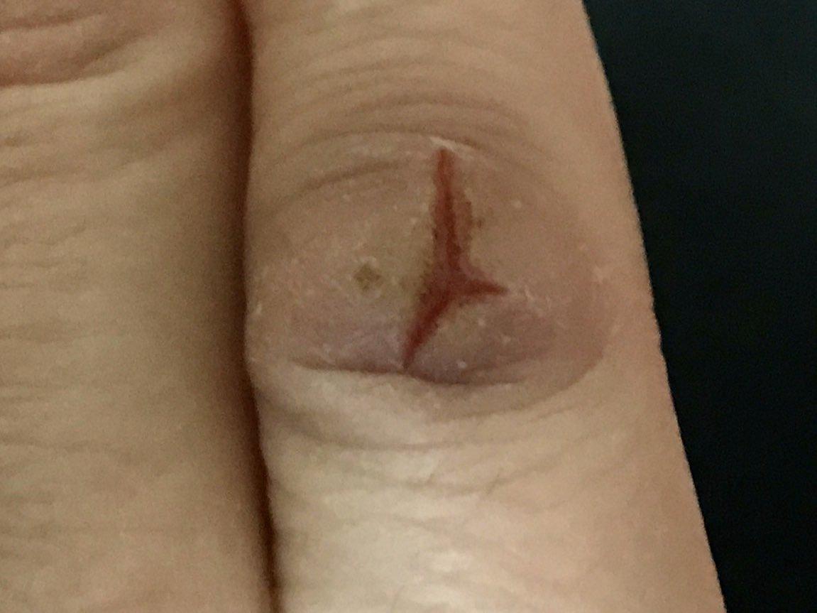 @EAKirkland Current pinky knuckle.