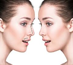 "RHINOPLASTY The term rhinoplasty means ""nose molding"" or ""nose forming."" It refers to a procedure in plastic surgery in which the structure of the nose is changed.   To Read more ==>https://www.collegeofnursingucbmsh.org/nursing/rhinoplasty … #UCBMSHDehradun #AgroScience #LifeScience, #Paramedical #Physiotherapy pic.twitter.com/Oz8RJWshQd"