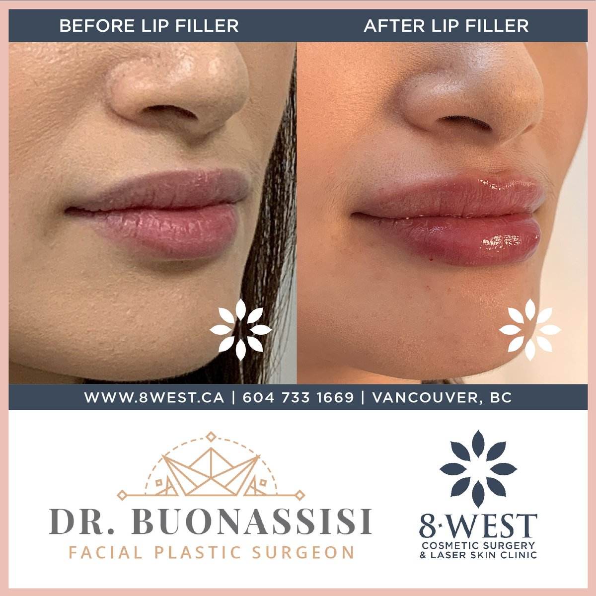 A little bit of pout shaping for this patient, performed by RN injector Lisa with a #lipfiller treatment.  The resulting look is a beautiful transformation of her cupid's bow area, along with an overall hydrated plump that remains subtle with her already full lips. pic.twitter.com/n0PqzN7JK6