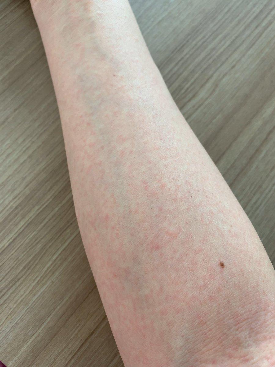 糠 粃 疹 原因 ジベル ばら色