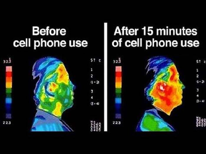 We are cooking in microwave radiation. The hard scientific evidence is now so overwhelming that not even the amoral corporate telcos dare discredit themselves by arguing against it.  #5G #Cancer #Stop5G #Health #Fitness  #ScoMo #EHS #EMF #EMR #EME #Radiation #Telstra #SmartMeterspic.twitter.com/0PU4pHQCH3