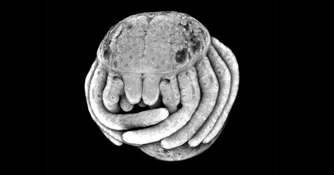 This microscopic view of a spider embryo is strangely adorable buff.ly/2uyeOe8