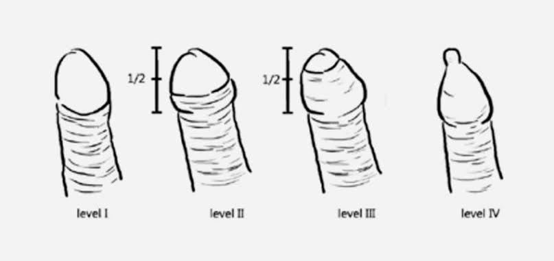 am un penis dur)