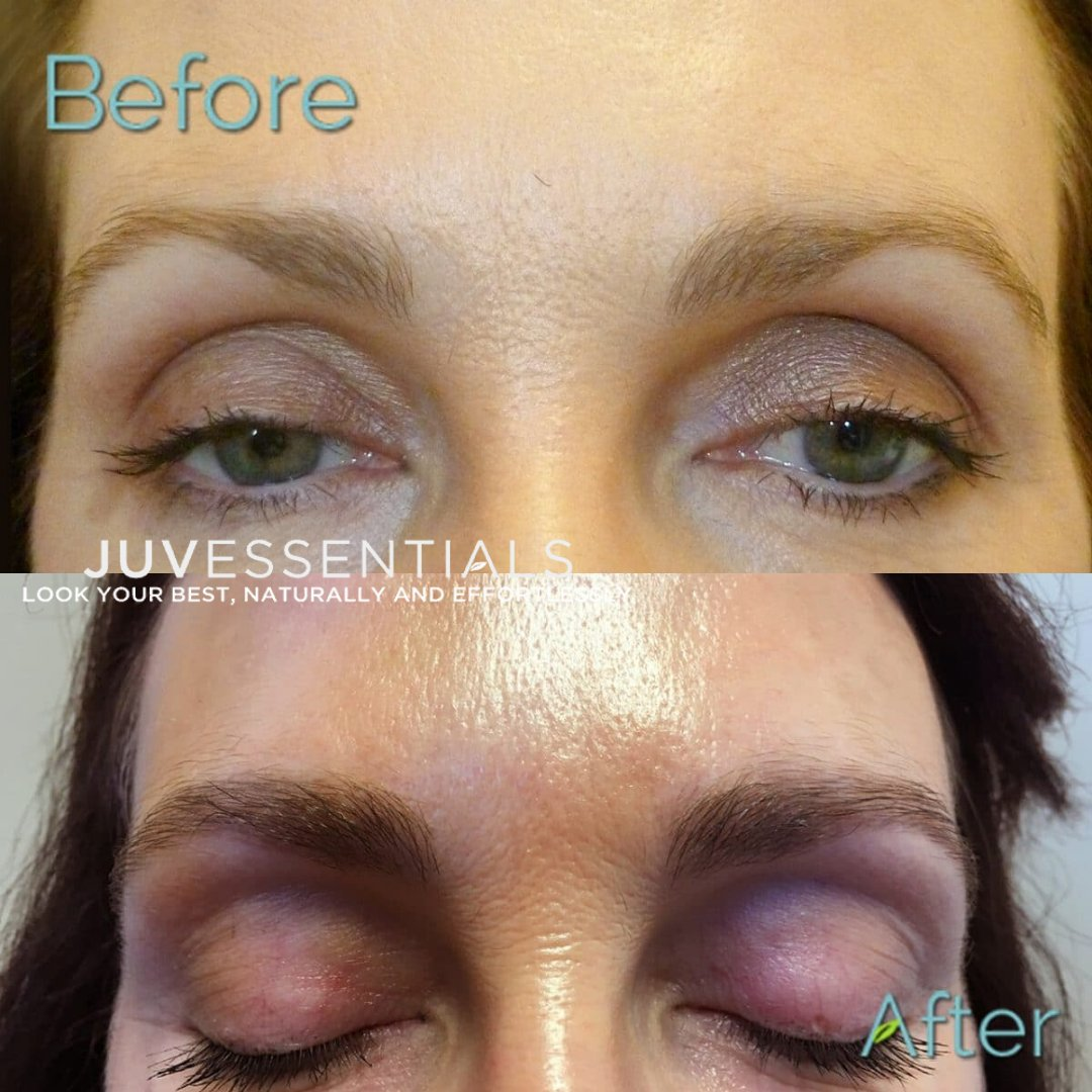 Why have your eyebrows microbladed/tattooed? Eyebrows provide definition and dimension for your face, and they provide an anchor and frame for the eyes. Have more questions about microblading or eyebrow tattooing? Get in touch!(415) 654-5859#MicrobladingBrows #PermanentMakeup pic.twitter.com/k1MKvAHozJ