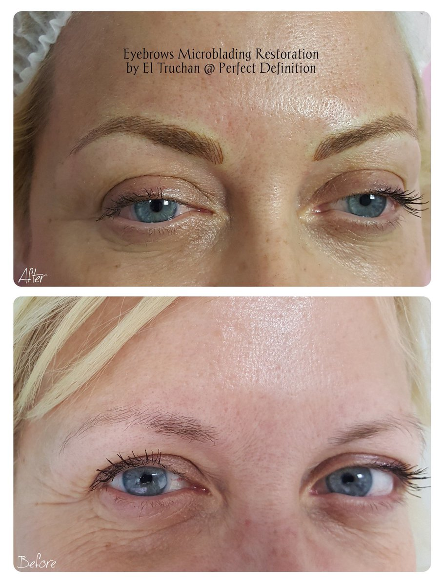 Eyebrows Microblading Restoration by El Truchan @ Perfect Definition  #3dhairstrokebrows #browstattoo #semipermanentmakeup #eyebrowspecialist #beauty #nouveaucontour #permanentmakeup #hairloss #brows #definition #london #medicaltattooing #medicaltattoo #microbladingpic.twitter.com/Q9sujQ6Wj7