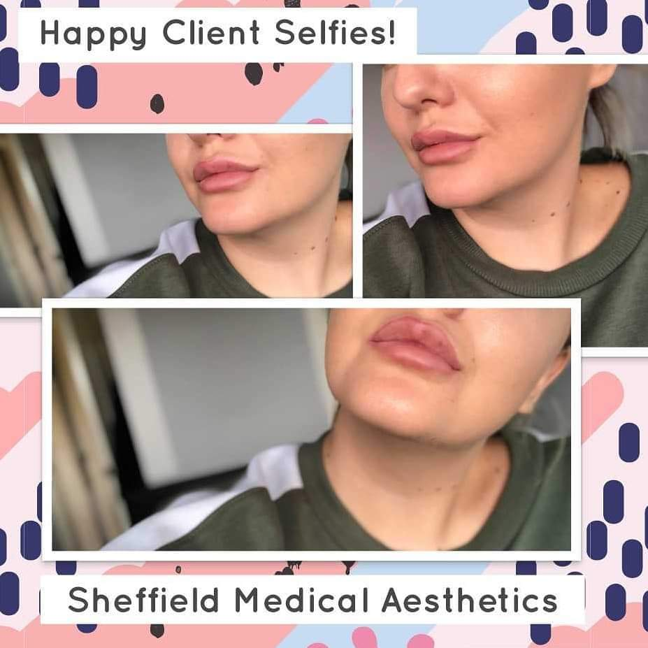 Missing my #lipfiller clients. Looking forward to seeing you all soon at #sheffieldmedicalaesthetics . pic.twitter.com/M8GdBg3oum
