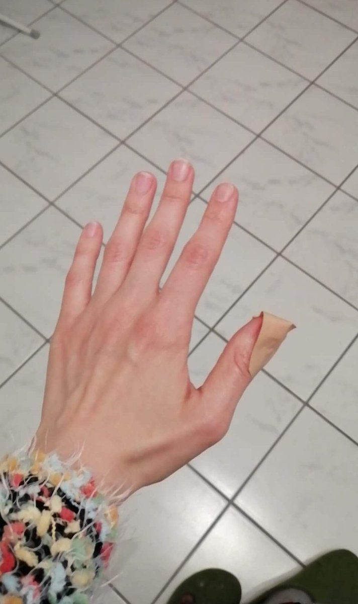 In fingerkuppe geschnitten