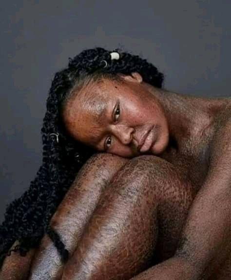 Despite her skin condition she still remain #beautiful pic.twitter.com/1RulNEZXE7
