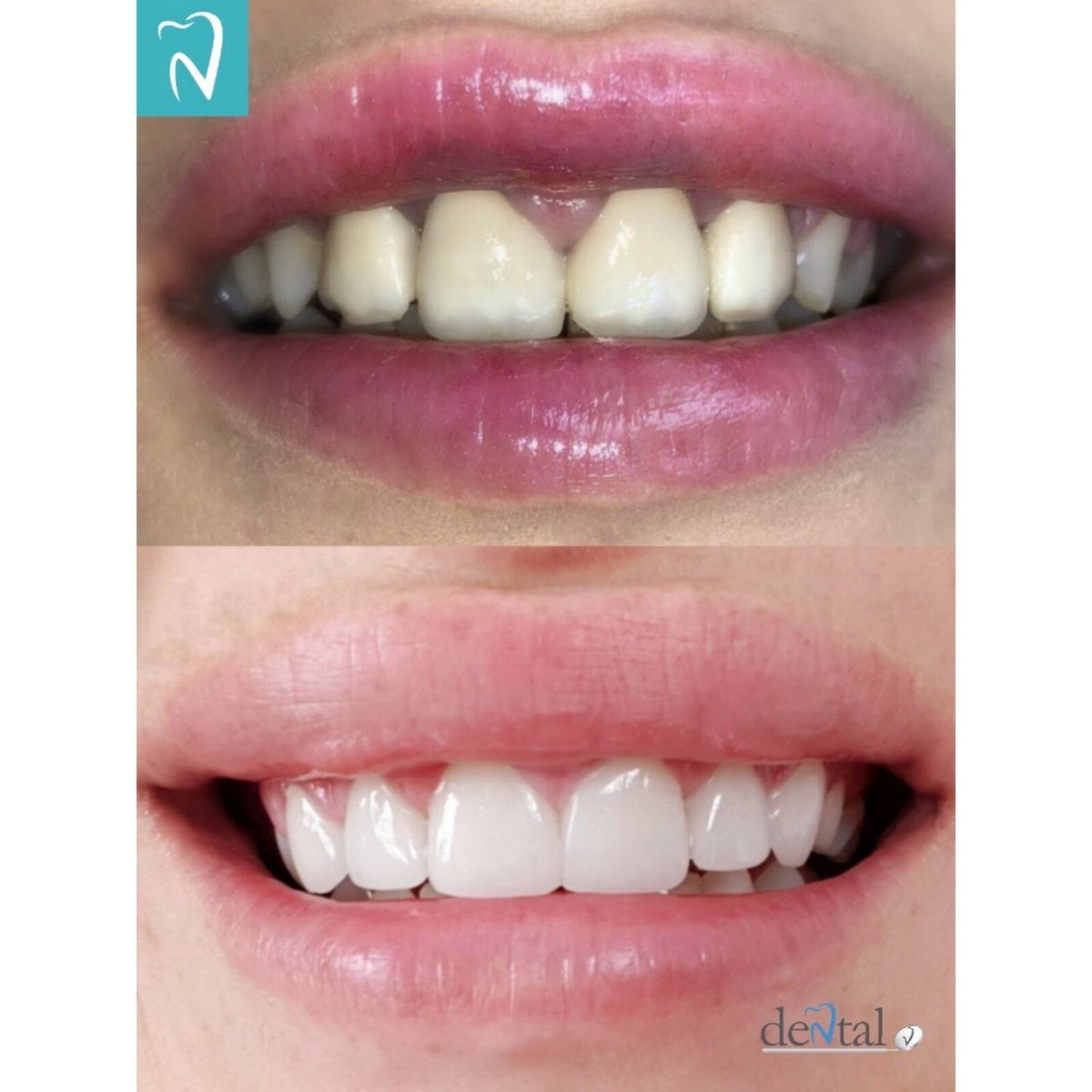 Gingivectomy and gingivoplasty. Old crowns are replaced with new ones and veneers, changing arch, shape, size and colour of the teeth.#dentistry #dentist #dental #smile #teeth #odontologia #cosmeticdentistry #dentalphotography #dentalcare #dentalimplants #veneers #dentalvclinicpic.twitter.com/JJiS1exiEz