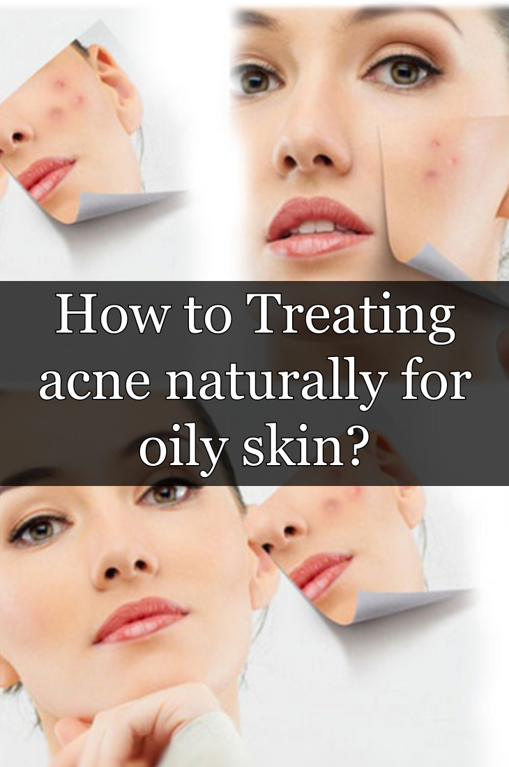 How to Treating acne naturally for oily skin? https://knowinenglish.com/treating-acne-naturally-for-oily-skin/ …  #acnestudios #acnetreatment #acnescars #acnefree #acneproblems #acnecream #acneskin #acnecare #acneproneskin #acneprone #AcneScarTreatment #AcneSolution #acnecommunity #Acnefacial #acnescar #acneseriespic.twitter.com/GIH2bj788K