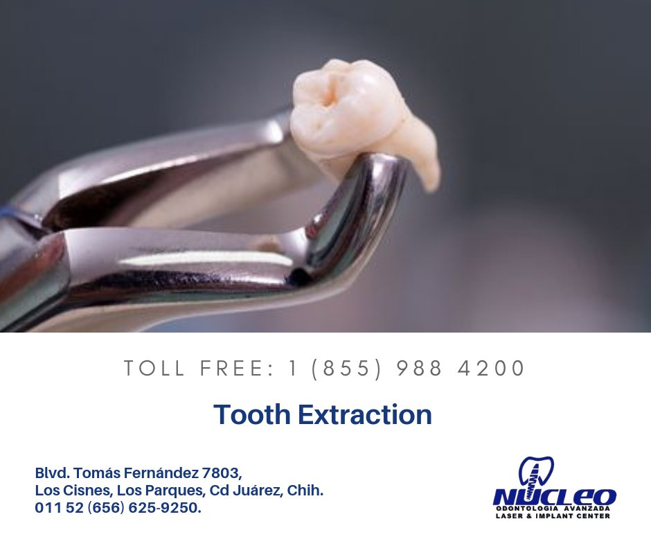 We're your Go-To #dentistry for tooth #extraction services.  Our highly experienced team is ready to take care of all your tooth extraction needs. https://bit.ly/3bGBT2Opic.twitter.com/gyxXT8BcV1