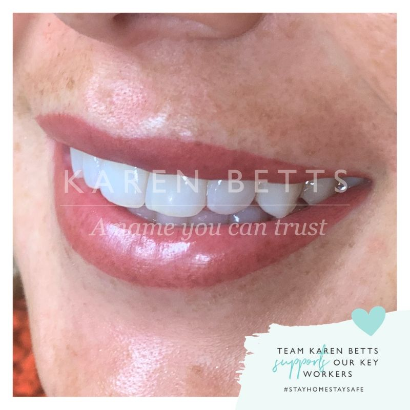 A beautiful #PMU lip treatment to remind us to keep smiling and keep strong   I'd love to share some  transformations with you all again if you'd like to see them? I'll still be sharing inspo quotes and tips along the way x pic.twitter.com/ucYmtzU7pG