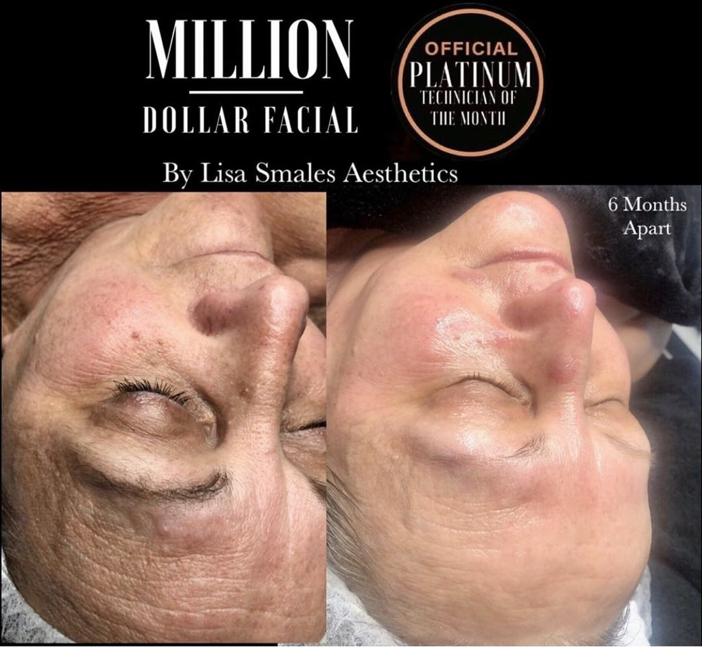 Bespoke Homecare Facials  Is your Skin feeling   DULL , TIRED , DARK SPOTS , UNEVEN SKIN TONE ,PIGMENTATION I HAVE THE ANSWER PRODUCTS THAT REALLY WORK   Check out before and after pics   #nofilter #samelighting #milliondollarfacial  Message me for details pic.twitter.com/gz3J6aWoVc