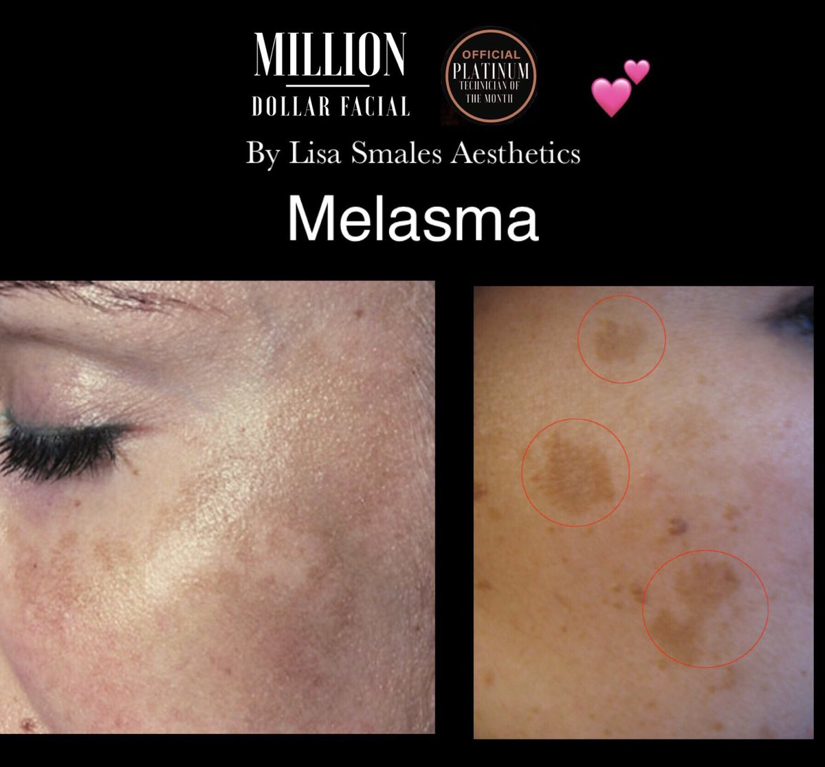 Do you suffer with this skin condition???  Melasma (muh-LAZ-muh) is a common skin problem.   Contact me for help @lisasmalesaesthetics  #SPF #MEDICALGRADE #VITAMINC #SKINNEEDLING #MEDIPLUS #MILLIONDOLLARFACIAL pic.twitter.com/dWkHJXXUgN