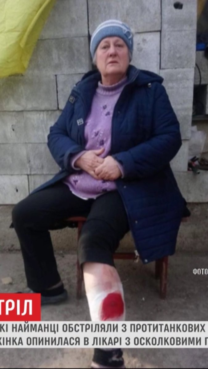 Russian occupation forces committed yet another war crime in #Ukraine, shelling a residential area of Verkhniotoretske from tripod-mounted portable antitank guns. Remarkably, only one 68 year old woman was injured by shrapnel. pic.twitter.com/KSg4JZzjGl