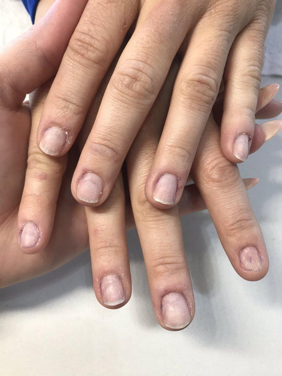 Nail transformation!!! #naturalnails #shortnails #nailcare #transformation #nudecolor #softcolor #fortworth #Texas #arlington #dallasfortworth #acrylic #opipowderperfection #processpic.twitter.com/rS4DfyO6w1