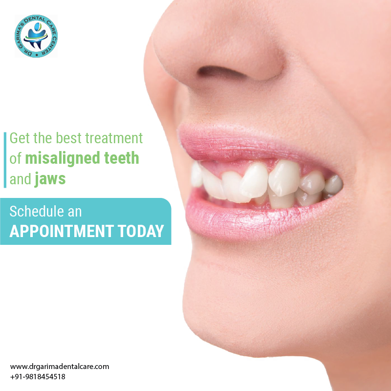 Get the best treatment of misaligned teeth and jaws. Meet our expert today! Visit http://www.drgarimadentalcare.com/ or call +91-9818454518 for more details. #Teeth #Teethproblems #Gumproblem #Silverfilling #Filling #Teethfilling #dentalcare #dentistry #Dentist #dentaltreatments #Gurgaonpic.twitter.com/hk6kJS0lDG