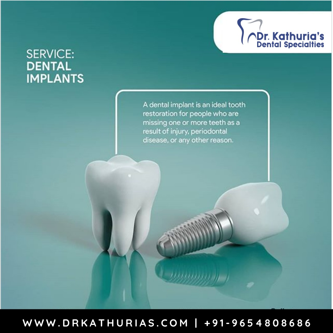 If you are considering implants, talk to your dentist to see if they are right for you. Visit Dr. Kathuria's Dental Specialities. Call us: 011 4084 6238 #badbreath #smile #gumproblem #dentalimplant #missingteeth #dentaltreatment #treatments #healthyteeth #happysmile #dentalcarepic.twitter.com/AE6EQGVQia