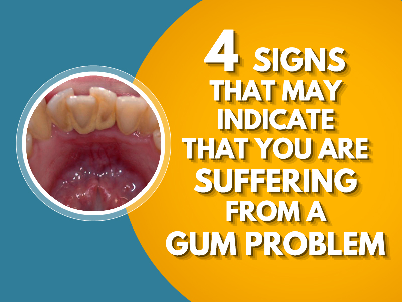 4 Signs that may indicate that you are suffering from a Gum Problem: -Gingivitis -Gums are Red and Swollen -Gums tissue loss or recession -Bleeding  #GumProblem #GumDisease #Bleeding #Swollen #Gingivitispic.twitter.com/ispDWsO0pK