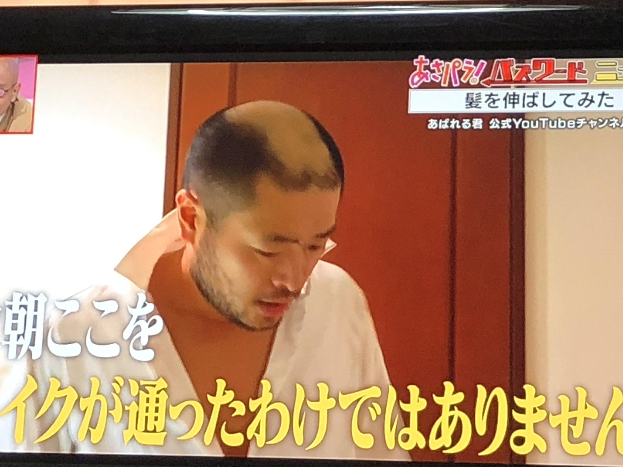 君 ザビエル あばれる 【動画】あばれる君、2週間以上髪を伸ばした結果