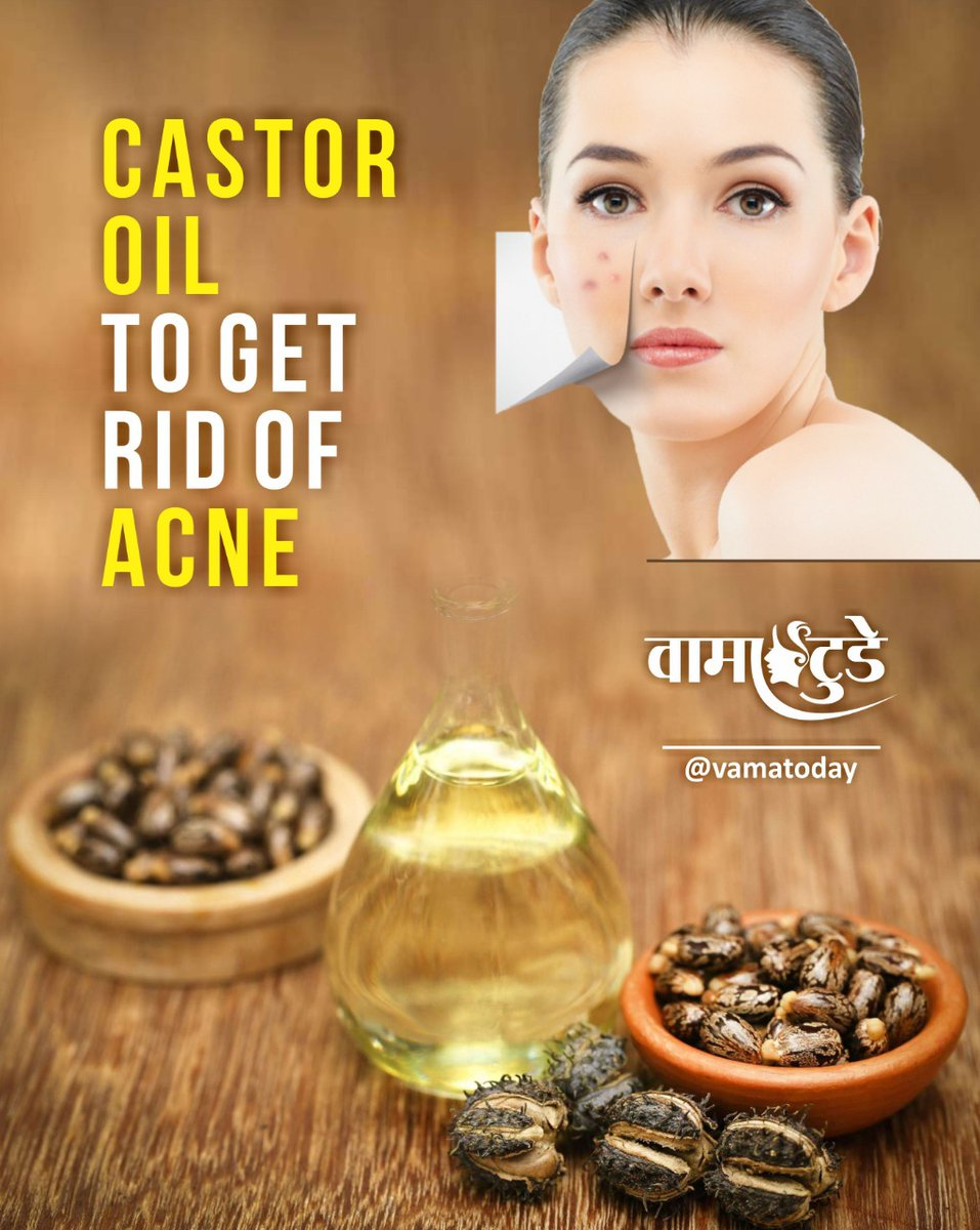Acne: The Antimicrobial & Anti-Inflammatory Properties Of Castor Oil Make It Useful In Reducing Acne. Ricinoleic Acid Can Inhibit Growth In The Bacteria That Cause Acne. #vamatoday #nirogdarpan #castoroil #acnepic.twitter.com/c6Sb3f1zxL