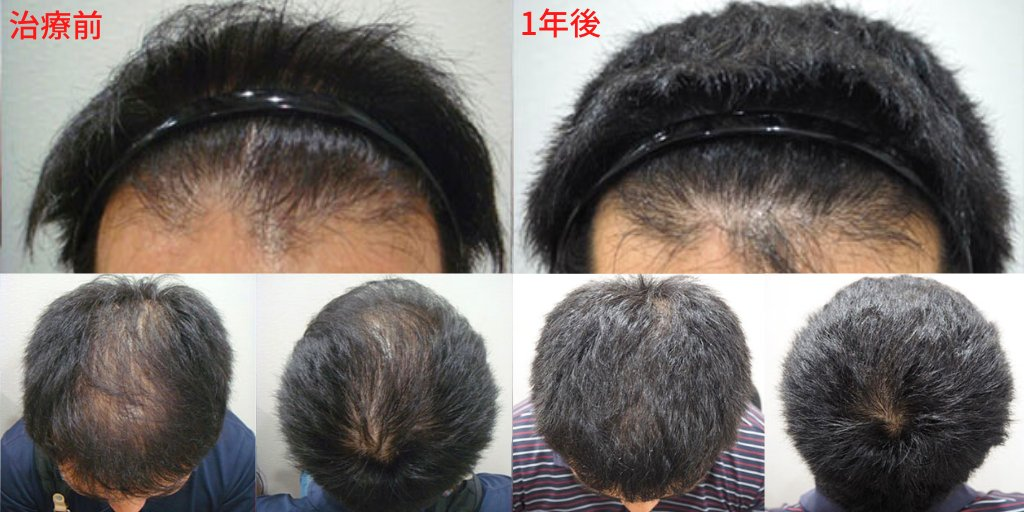 薄い 部 前 頭 白髪ができる場所と原因・対処法まとめ【頭頂部・生え際・後頭部】