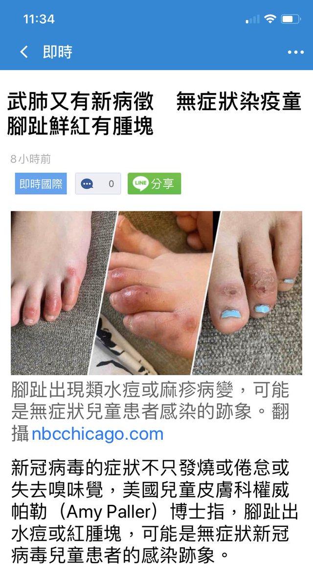 足 の 指 コロナ