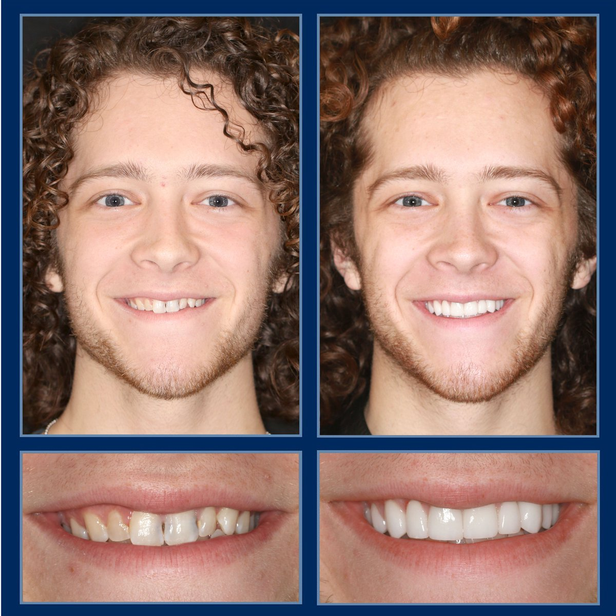 Is it just us or does Max look like a total rockstar with his new #smilemakeover? We love when solutions like #veneers, bridges, #dentalimplants and #reconstructivedentistry come together to help a patient look like they've always naturally had that smile. http://TheCosmeticDentistsOfAustin.compic.twitter.com/TOK7cQbCKw