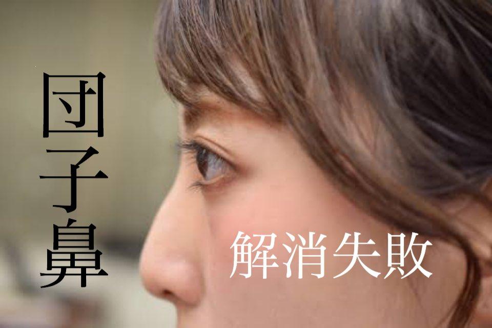 #だんご鼻解消 する整形の鼻尖形成術はチェーン店などの大衆的な美容外科でも行われていますが、トラブルが増えてきています。失敗例としては、📝鼻曲がり📝軟骨の吸収📝ポリービーク変形やピンチノーズなどの奇形📝壊しや感染#鼻尖形成 #鼻尖縮小