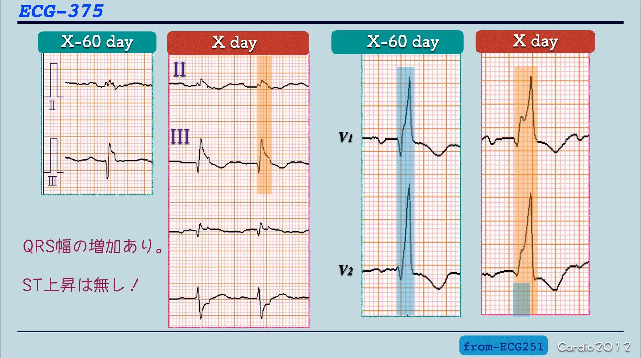 心電図 肺 塞栓 症