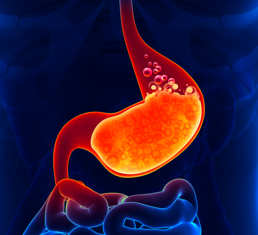 H pylori, #gastrectomia a manicotto e #reflusso gastroesofageo https://t.co/I6NPosmt2U https://t.co/CVGjx5swra
