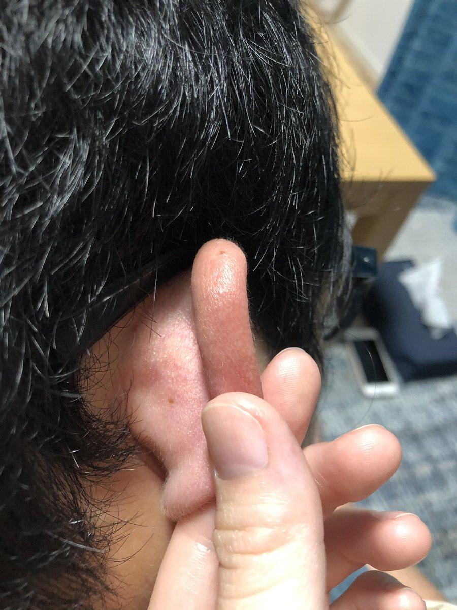 の 後ろ の ホクロ 耳