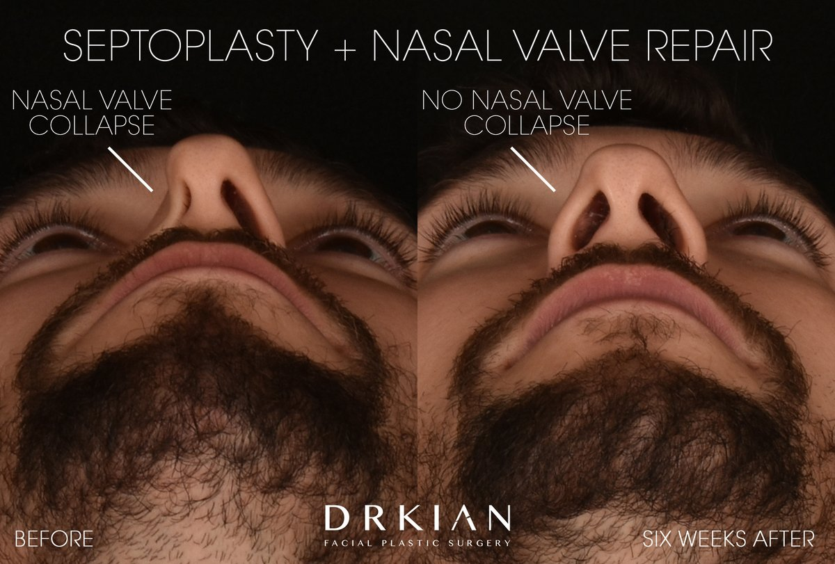 NEW VIDEO: Optimizing Athletic Performance: #Septoplasty + Nasal Valve Repair https://t.co/C1pjRDHjAf  #PlasticSurgery #NoseByDrKian https://t.co/IbLg6LWFIc